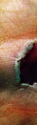 This is a shot of the wound on my hand where I fell. I messed with the colors. It's kind of hard to get it to heal.